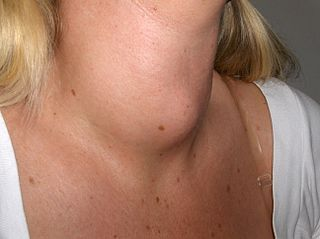 gejala hipertiroid
